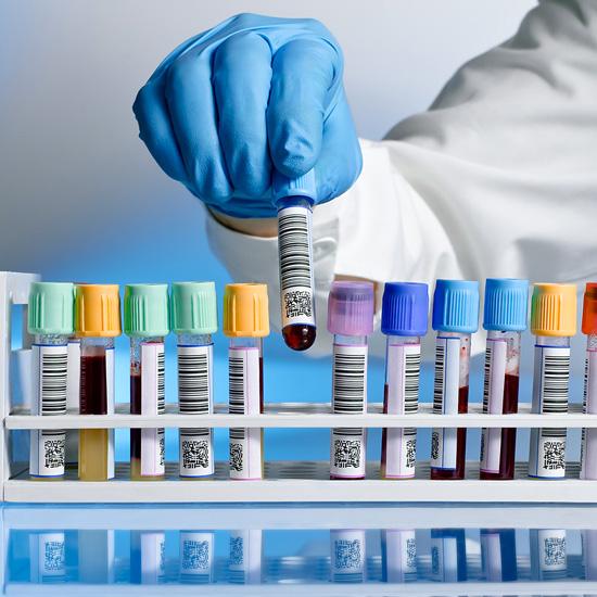 Teste de sensibilidade - diagnóstico in vitro
