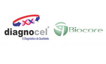 Novas áreas de atuação do Grupo Diagnocel e Biocore com a Abbott Nutricional